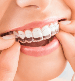 Close-up of someone putting an Invisalign clear aligner in their mouth