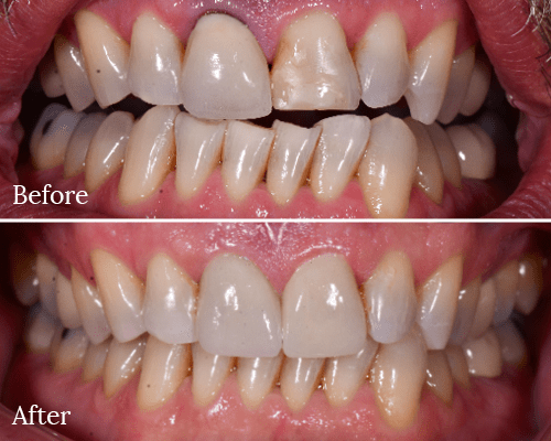 A before and after smile makeover by our dentist in Charlotte, NC