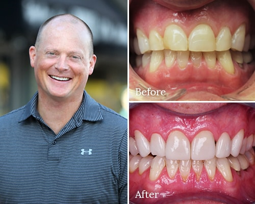 Real patient Jim's before and after smile gallery photos