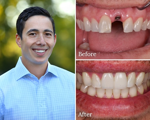 Real patient Ken's before and after dental implant photos